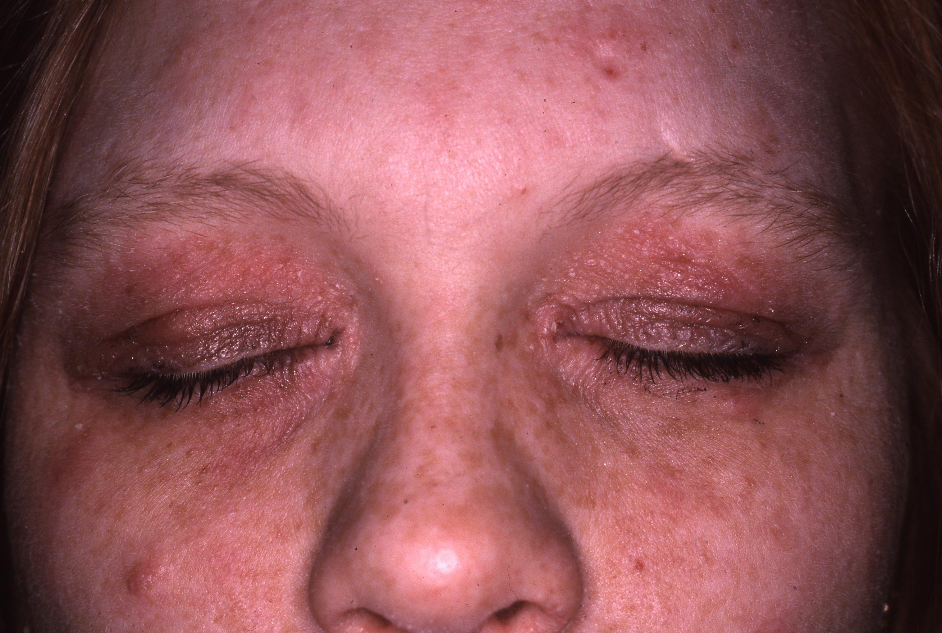 Атопиченият дерматит при възрастни