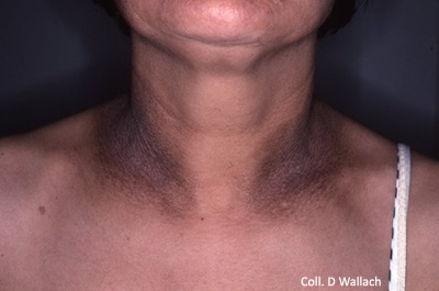 Fig.7: Pigmented lichenification in the neck folds of an atopic adult.