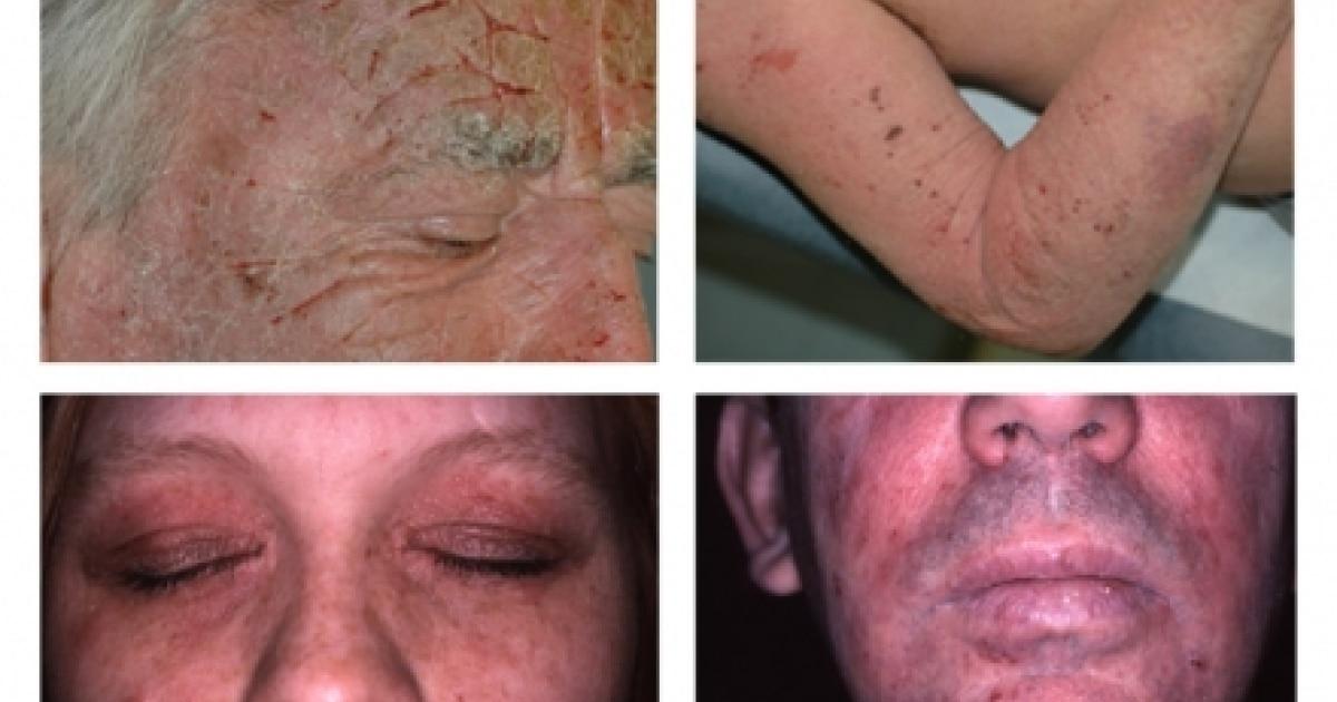 Cómo tratar la infección por biopsia de piel