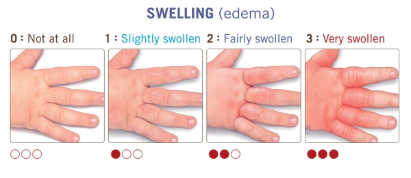 swelling-edema-atopic-dermatitis